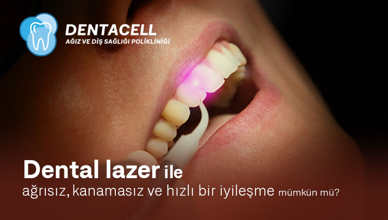 Dental Lazer