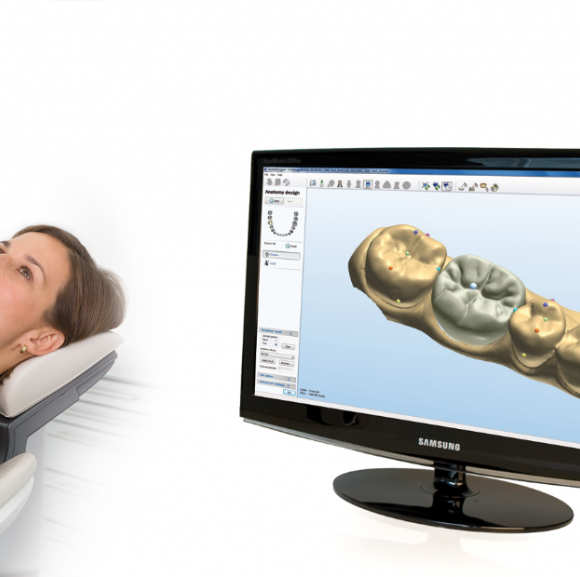 Digital Dentistry and CAD-CAM