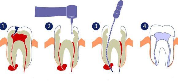 Endodontie –  Wurzelbehandlung