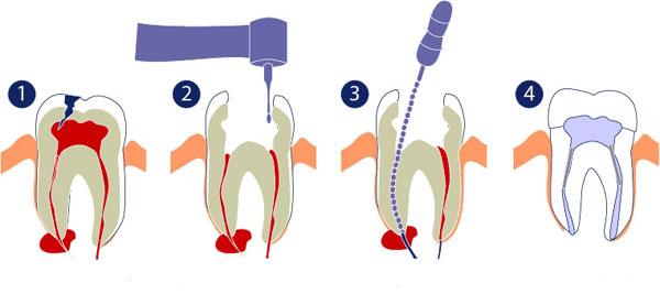 Endodontics – Canal Treatment