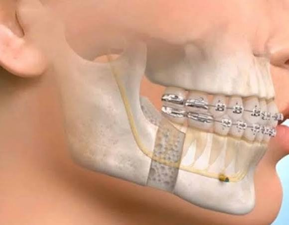 Dental and Maxillofacial Surgery