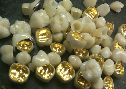 Metal Ceramic Crowns