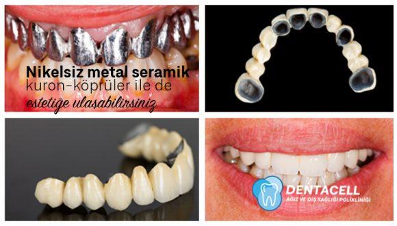 Metal Seramik Kron