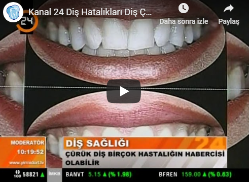 Channel 24 Interview with Dental Diseases