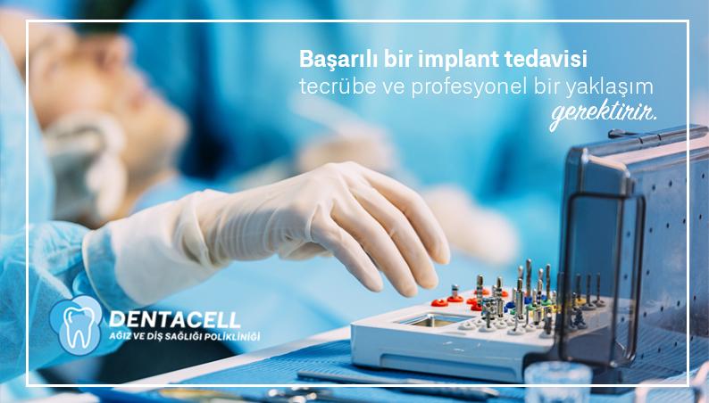 Implantat (Künstliche Zahnwurzel)